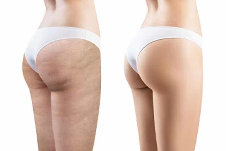 Cellulite cosce